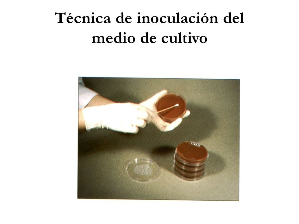 Técnica de inoculación del medio de cultivo