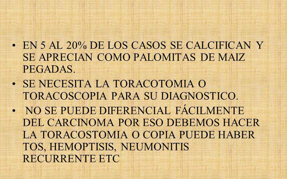 EN 5 AL 20% DE LOS CASOS SE CALCIFICAN Y SE APRECIAN COMO PALOMITAS DE MAIZ PEGADAS.