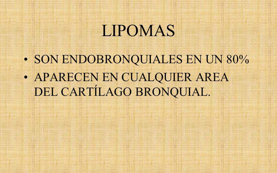 LIPOMAS SON ENDOBRONQUIALES EN UN 80%