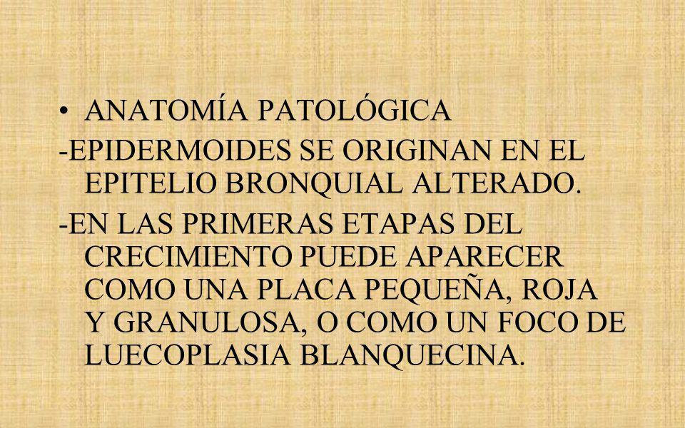ANATOMÍA PATOLÓGICA -EPIDERMOIDES SE ORIGINAN EN EL EPITELIO BRONQUIAL ALTERADO.