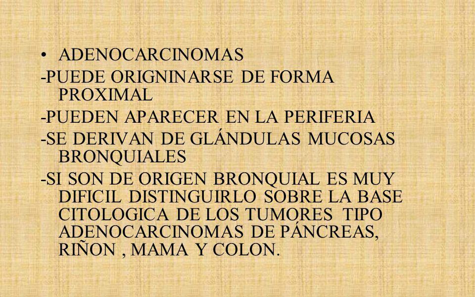 ADENOCARCINOMAS -PUEDE ORIGNINARSE DE FORMA PROXIMAL. -PUEDEN APARECER EN LA PERIFERIA. -SE DERIVAN DE GLÁNDULAS MUCOSAS BRONQUIALES.