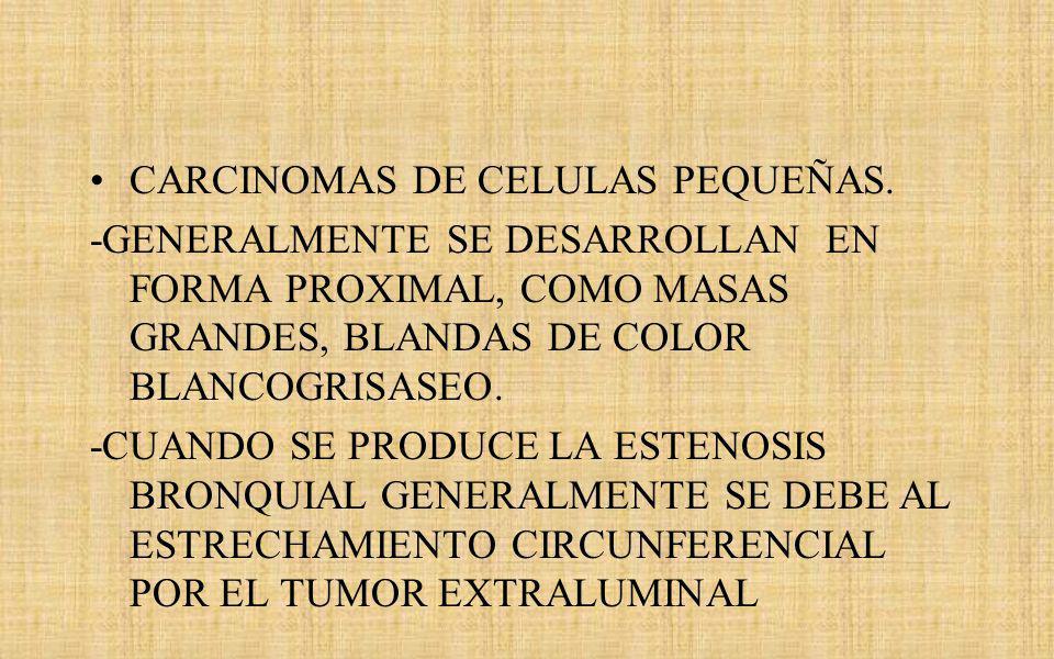 CARCINOMAS DE CELULAS PEQUEÑAS.