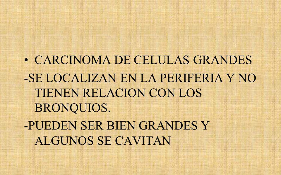 CARCINOMA DE CELULAS GRANDES