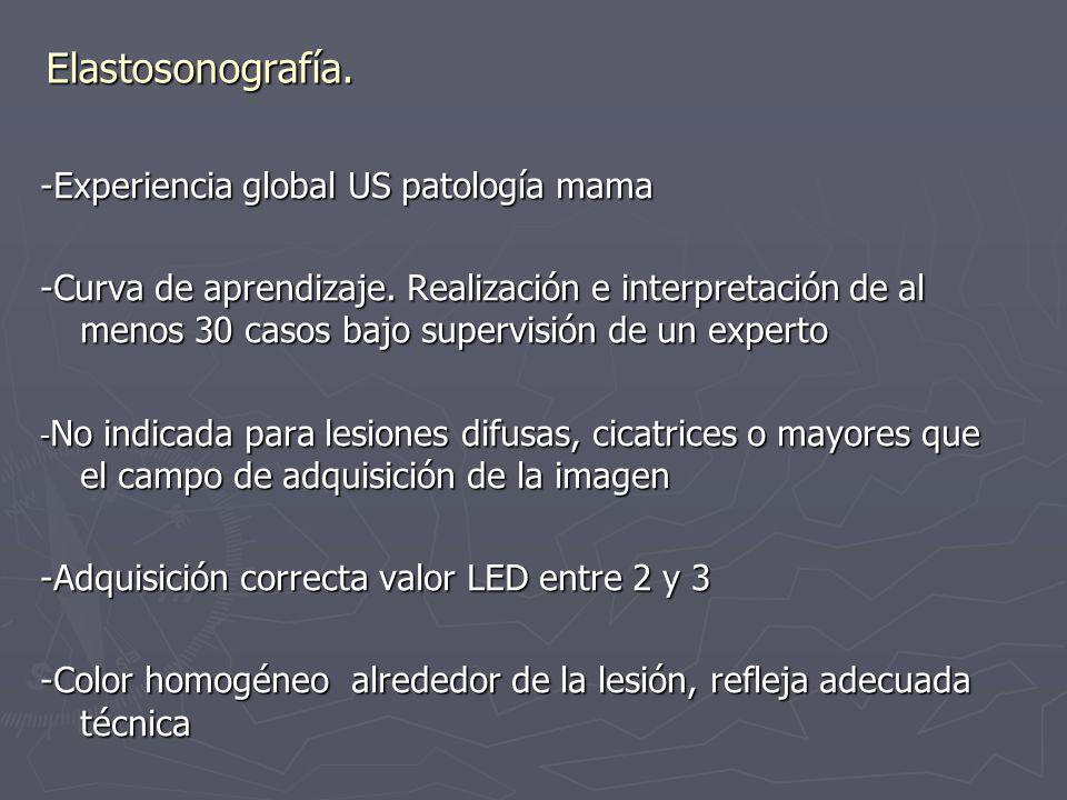 Elastosonografía. -Experiencia global US patología mama