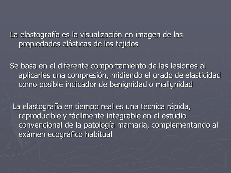 La elastografía es la visualización en imagen de las propiedades elásticas de los tejidos