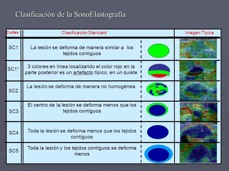 Clasificación de la SonoElastografía