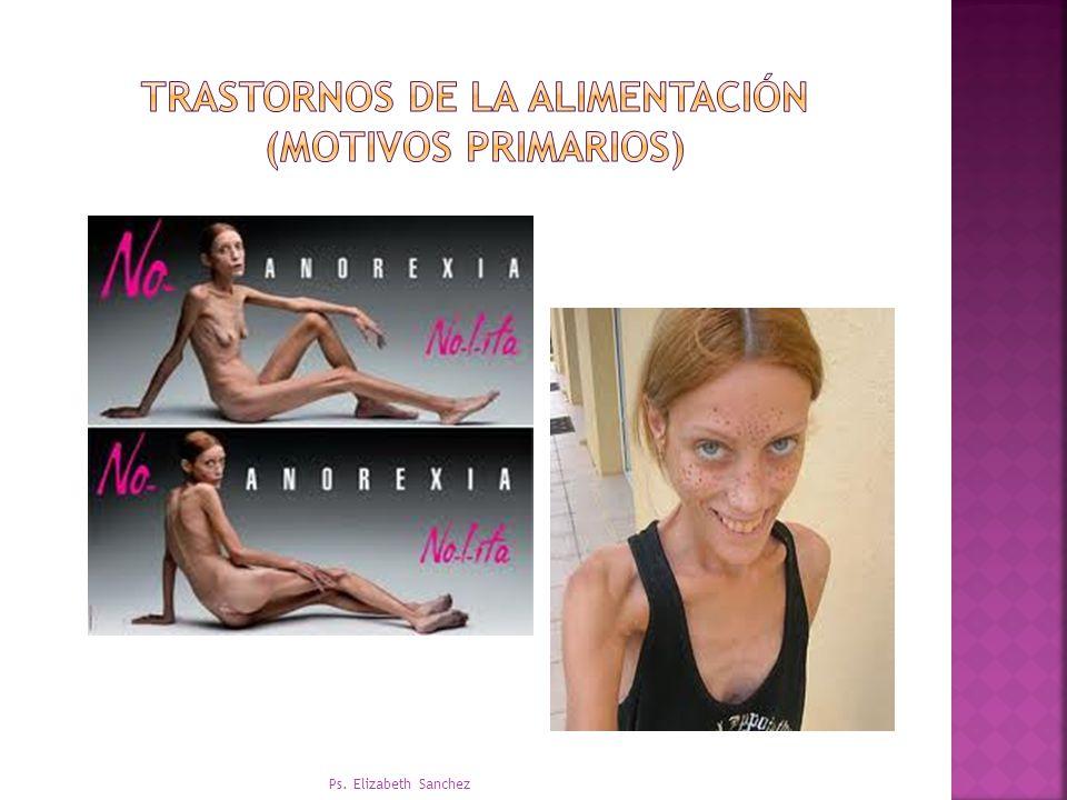 Trastornos de la alimentación (motivos primarios)