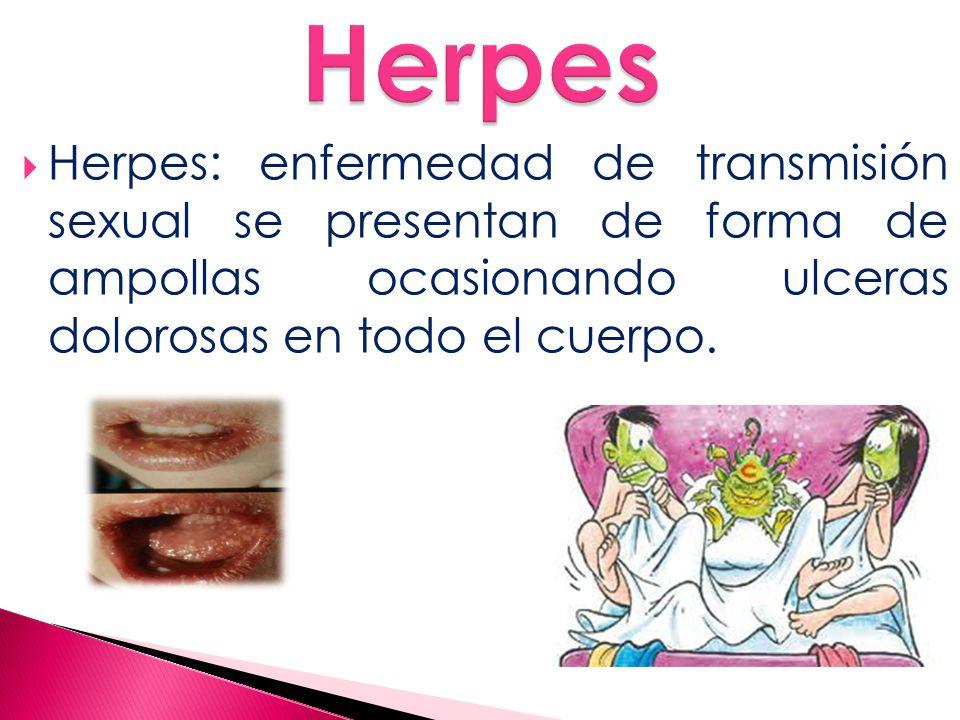 Herpes Herpes: enfermedad de transmisión sexual se presentan de forma de ampollas ocasionando ulceras dolorosas en todo el cuerpo.