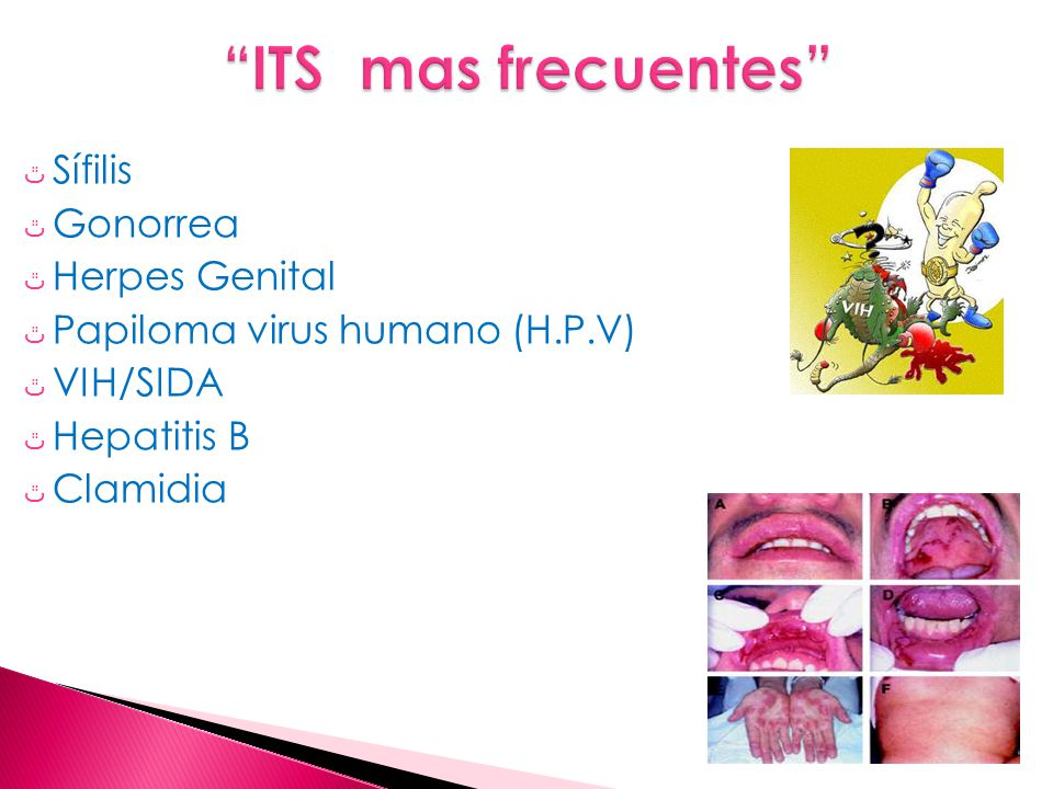 ITS mas frecuentes Sífilis Gonorrea Herpes Genital