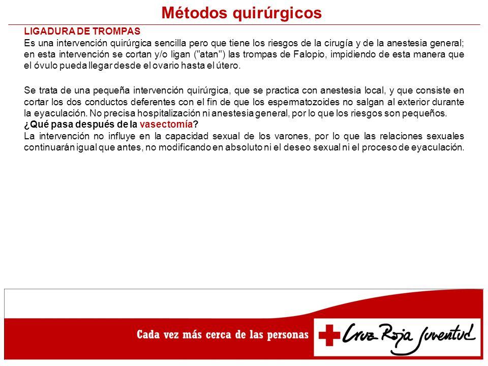Métodos quirúrgicos LIGADURA DE TROMPAS