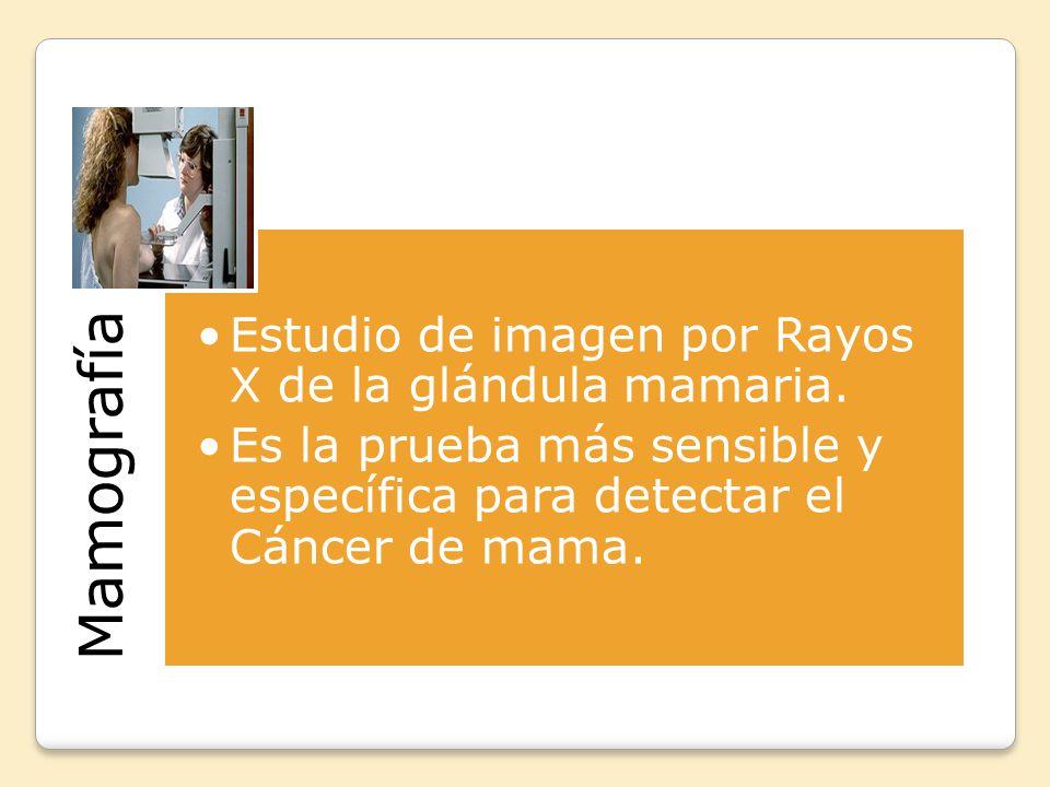 Mamografía Estudio de imagen por Rayos X de la glándula mamaria.