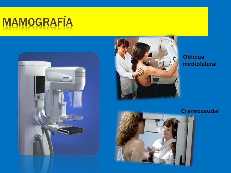Mamografía Oblicua mediolateral Cráneocaudal
