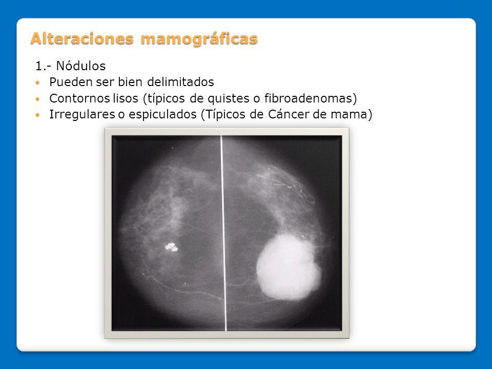 Alteraciones mamográficas