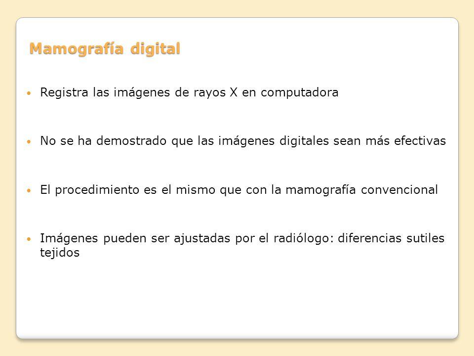 Mamografía digital Registra las imágenes de rayos X en computadora