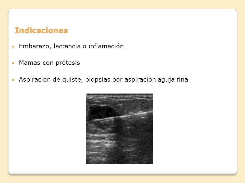 Indicaciones Embarazo, lactancia o inflamación Mamas con prótesis