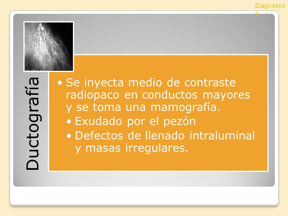 Diagnóstico Ductografía