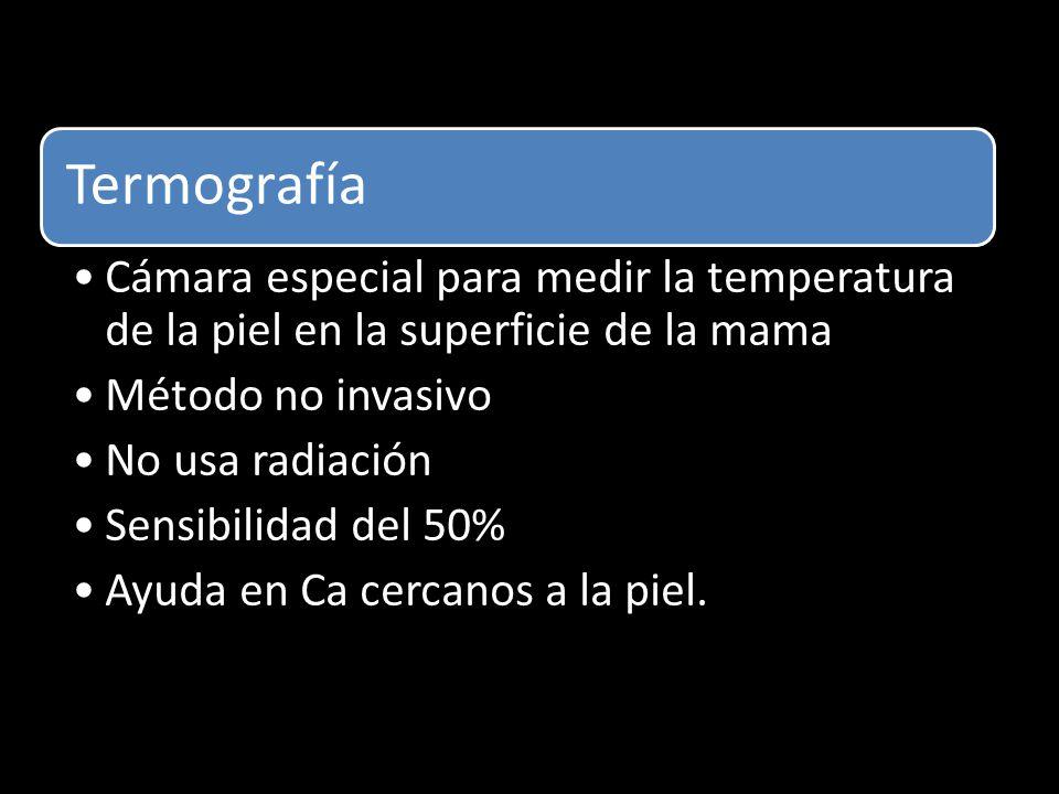 Termografía Cámara especial para medir la temperatura de la piel en la superficie de la mama. Método no invasivo.