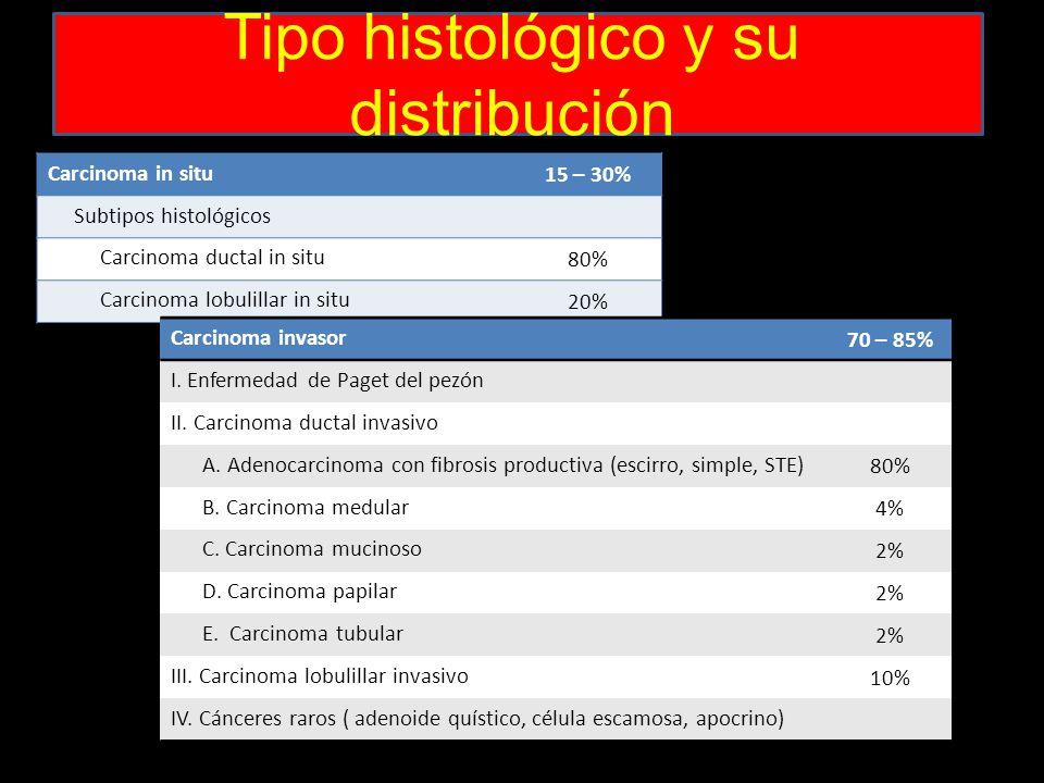 Tipo histológico y su distribución