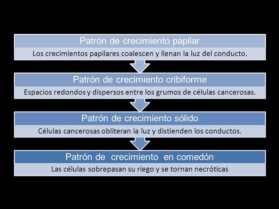 Patrón de crecimiento papilar Patrón de crecimiento cribiforme