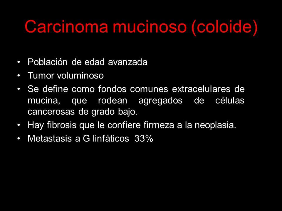 Carcinoma mucinoso (coloide)