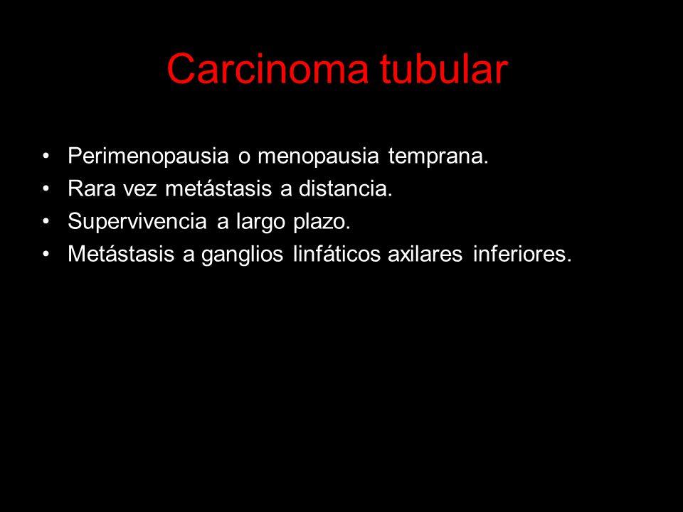 Carcinoma tubular Perimenopausia o menopausia temprana.