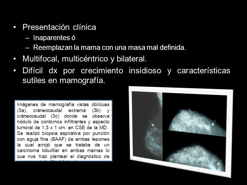 Multifocal, multicéntrico y bilateral.