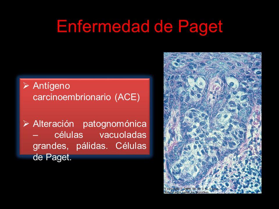Enfermedad de Paget Antígeno carcinoembrionario (ACE)