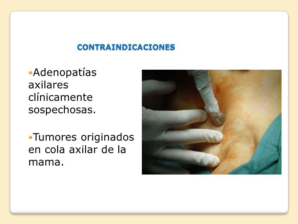 Adenopatías axilares clínicamente sospechosas.