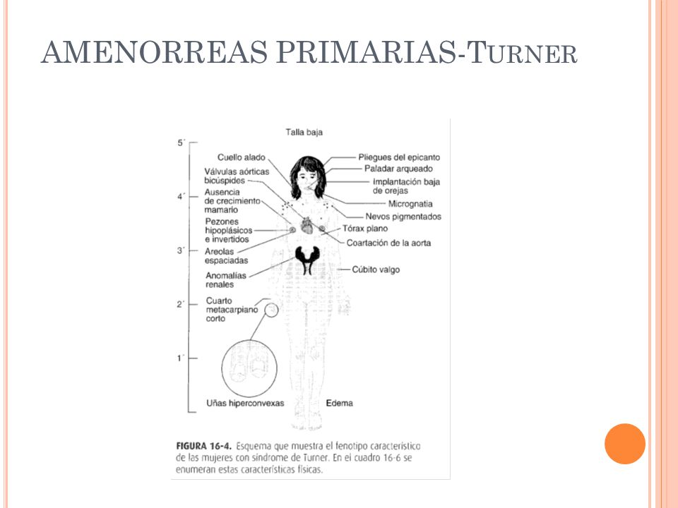 AMENORREAS PRIMARIAS-Turner