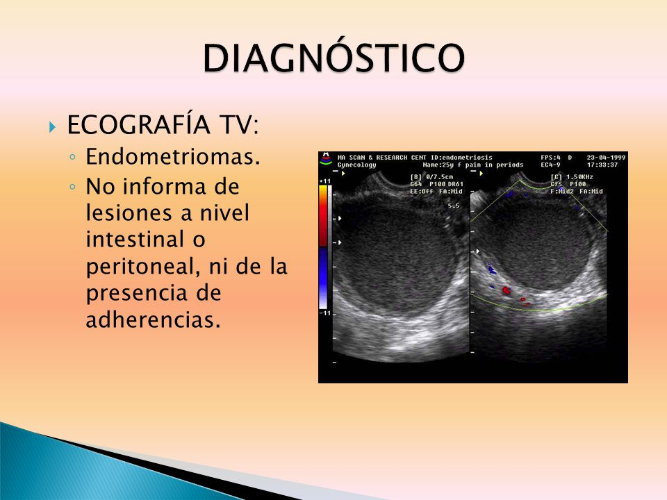 DIAGNÓSTICO ECOGRAFÍA TV: Endometriomas.