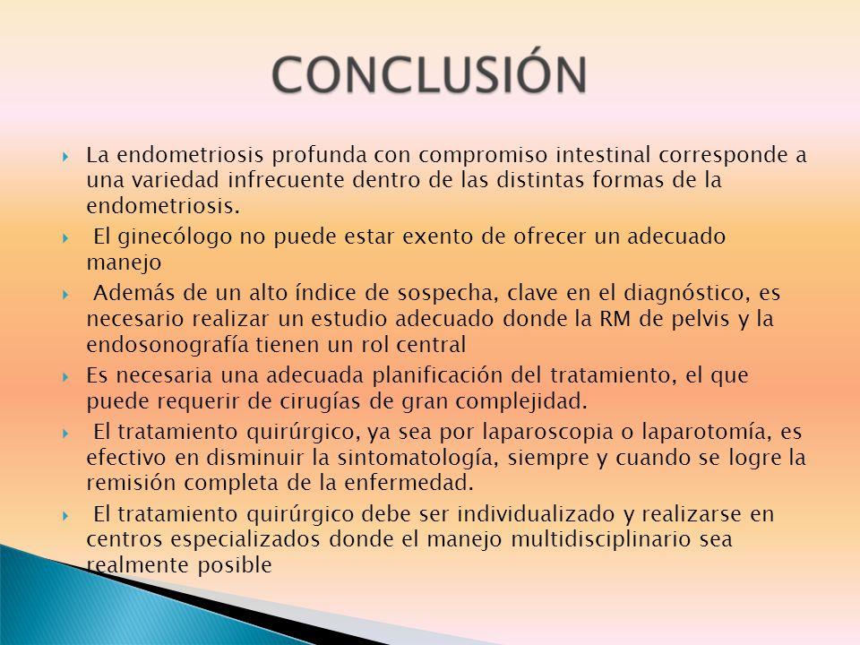 La endometriosis profunda con compromiso intestinal corresponde a una variedad infrecuente dentro de las distintas formas de la endometriosis.