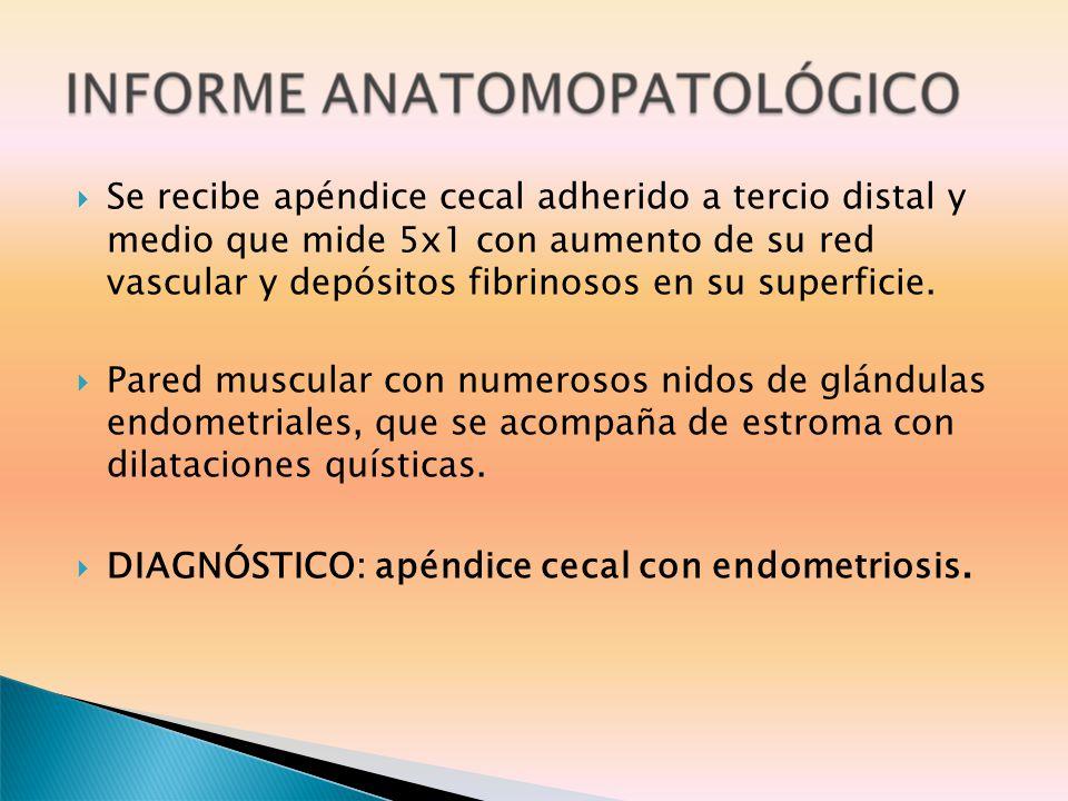 Se recibe apéndice cecal adherido a tercio distal y medio que mide 5x1 con aumento de su red vascular y depósitos fibrinosos en su superficie.