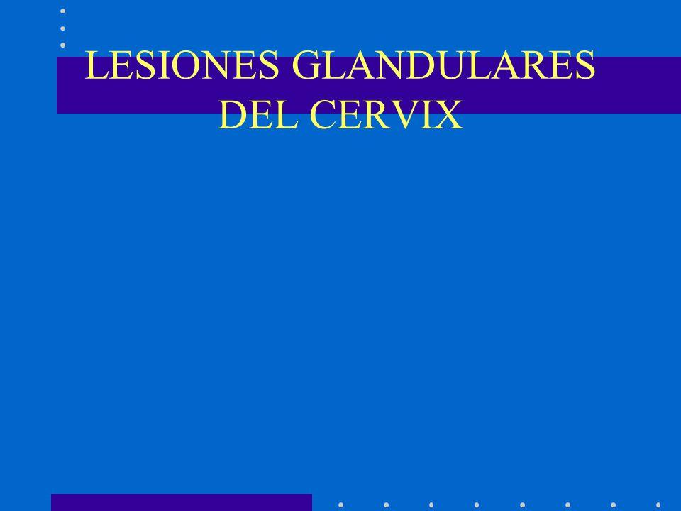 LESIONES GLANDULARES DEL CERVIX