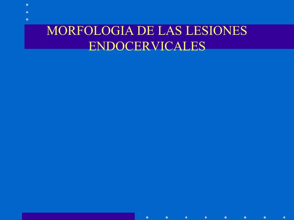 MORFOLOGIA DE LAS LESIONES ENDOCERVICALES