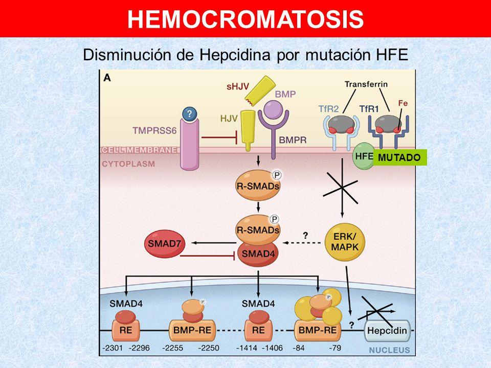 Disminución de Hepcidina por mutación HFE