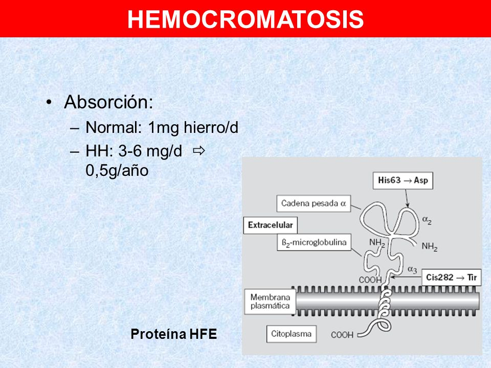 HEMOCROMATOSIS Absorción: Normal: 1mg hierro/d HH: 3-6 mg/d  0,5g/año