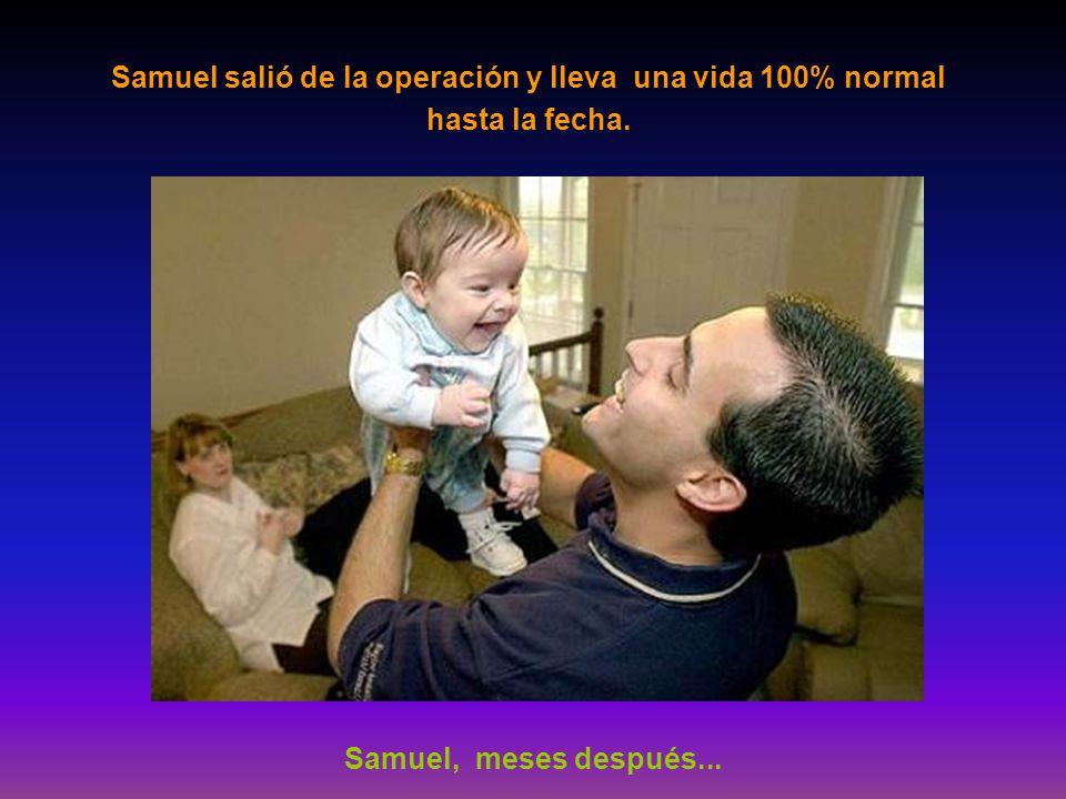 Samuel salió de la operación y lleva una vida 100% normal hasta la fecha.