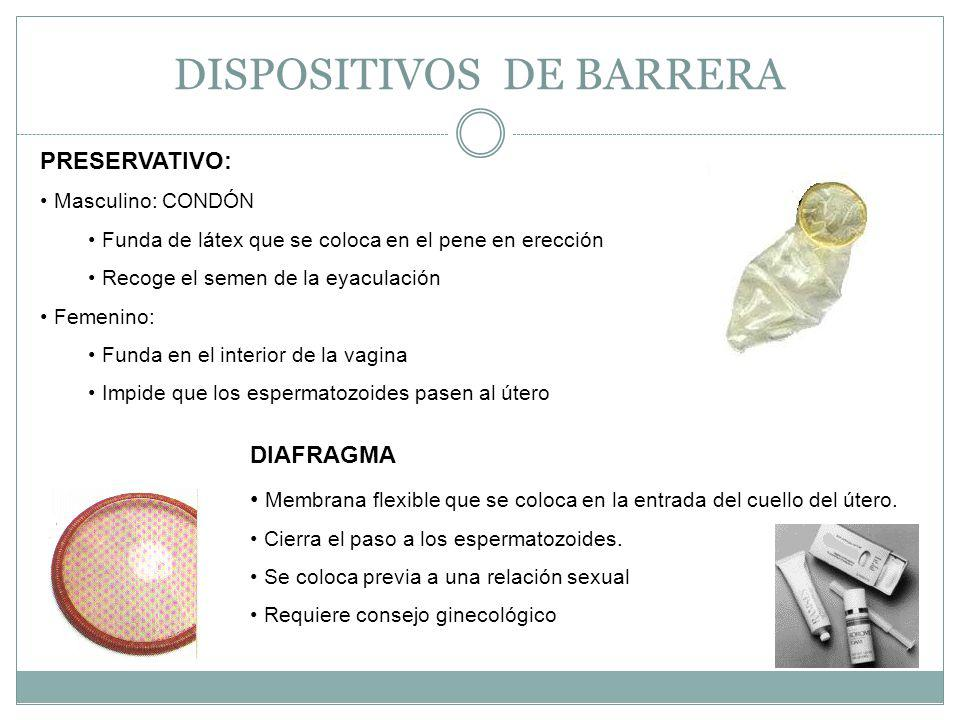 DISPOSITIVOS DE BARRERA