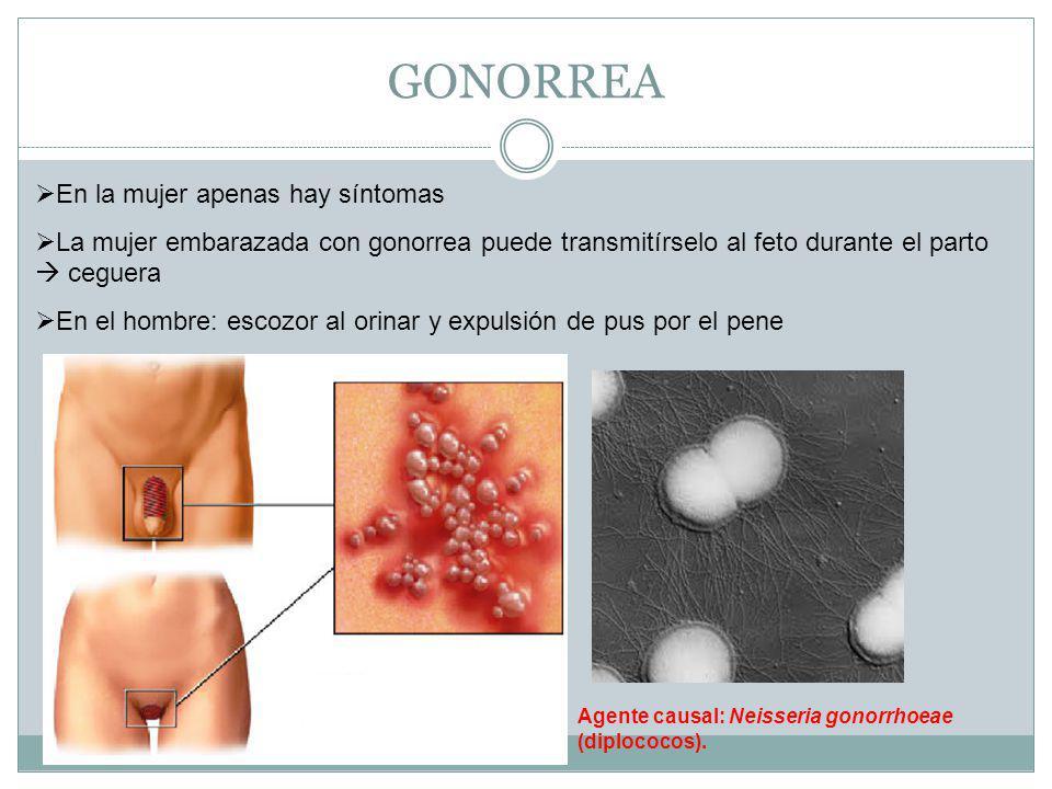 GONORREA En la mujer apenas hay síntomas