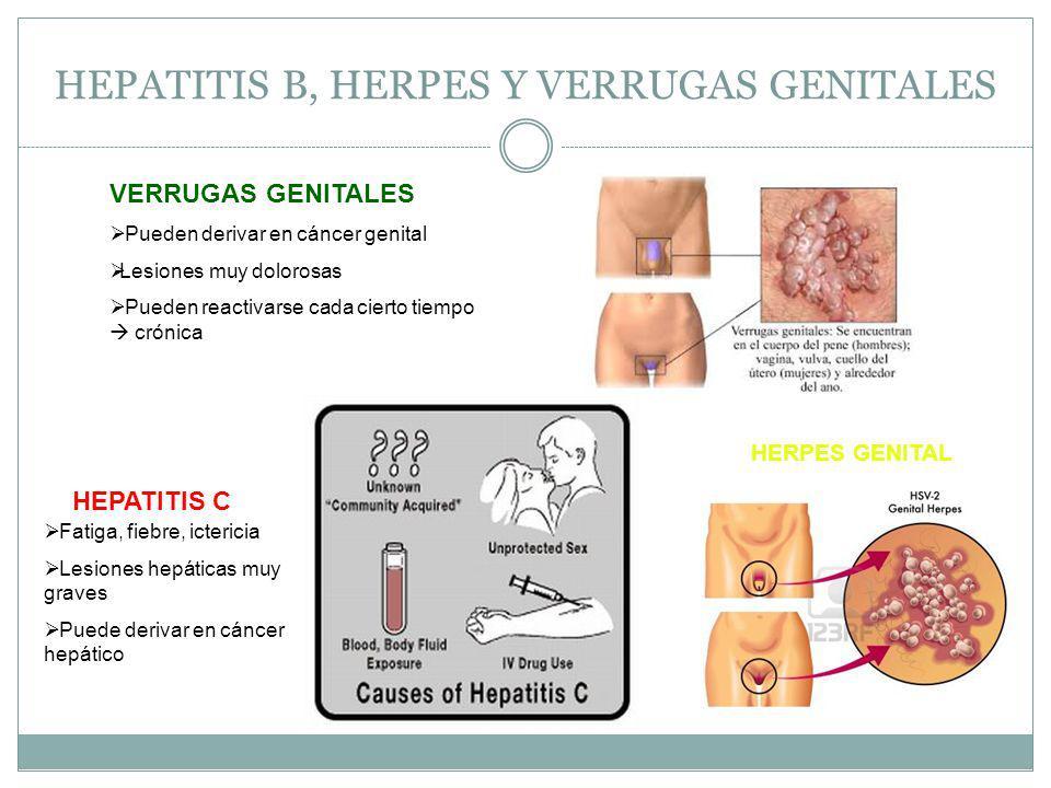 HEPATITIS B, HERPES Y VERRUGAS GENITALES