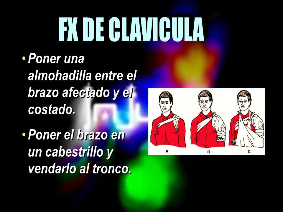 FX DE CLAVICULA Poner una almohadilla entre el brazo afectado y el costado.