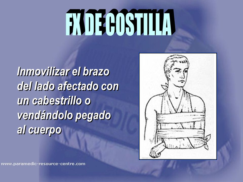 FX DE COSTILLA Inmovilizar el brazo del lado afectado con un cabestrillo o vendándolo pegado al cuerpo.