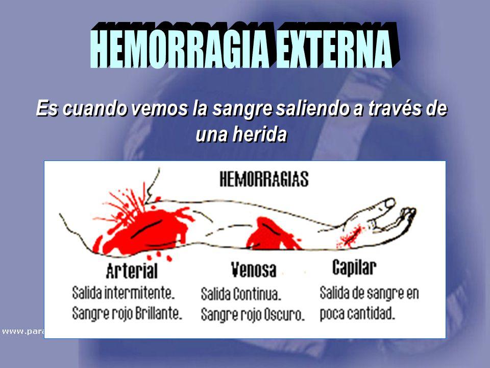 Es cuando vemos la sangre saliendo a través de una herida
