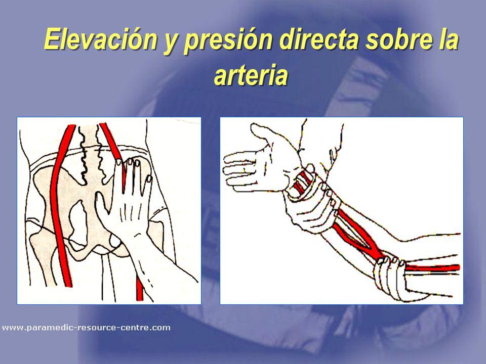 Elevación y presión directa sobre la arteria