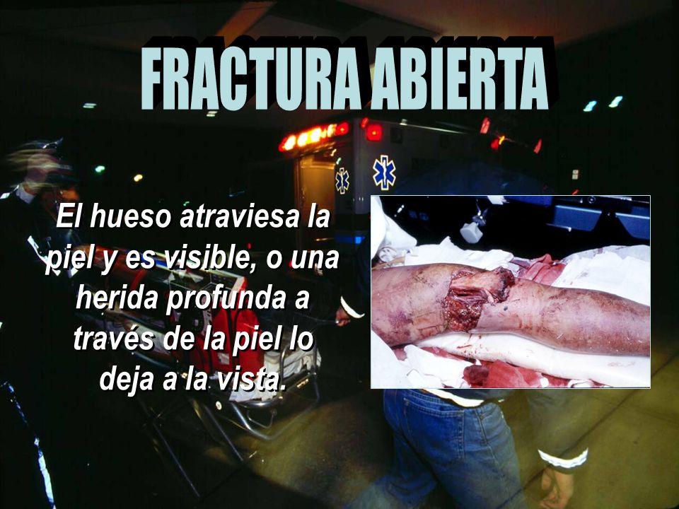 FRACTURA ABIERTA El hueso atraviesa la piel y es visible, o una herida profunda a través de la piel lo deja a la vista.