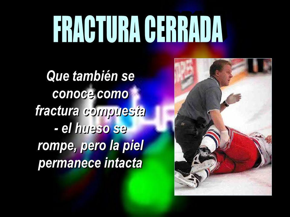 FRACTURA CERRADA Que también se conoce como fractura compuesta - el hueso se rompe, pero la piel permanece intacta.