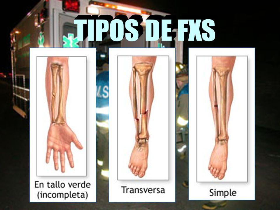 TIPOS DE FXS