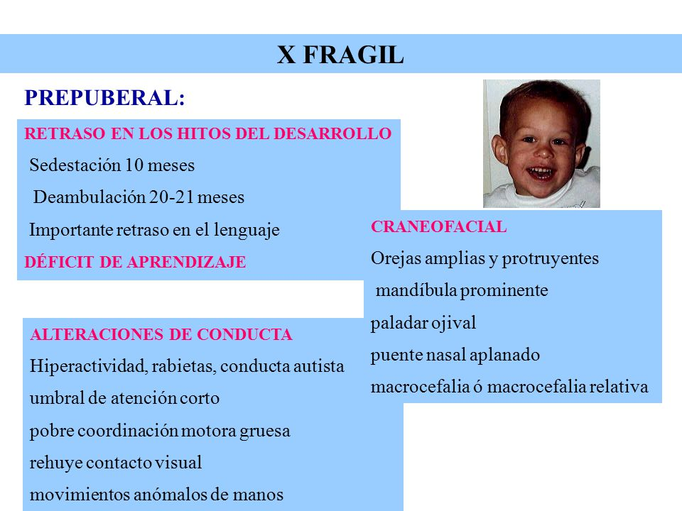 X FRAGIL PREPUBERAL: Sedestación 10 meses Deambulación 20-21 meses