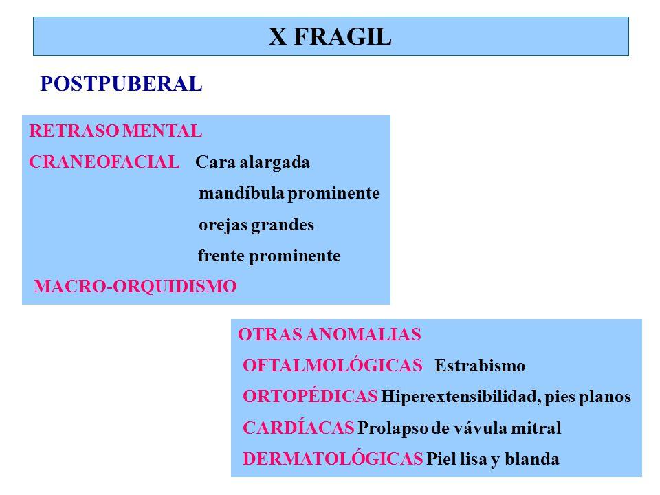 X FRAGIL POSTPUBERAL RETRASO MENTAL CRANEOFACIAL Cara alargada