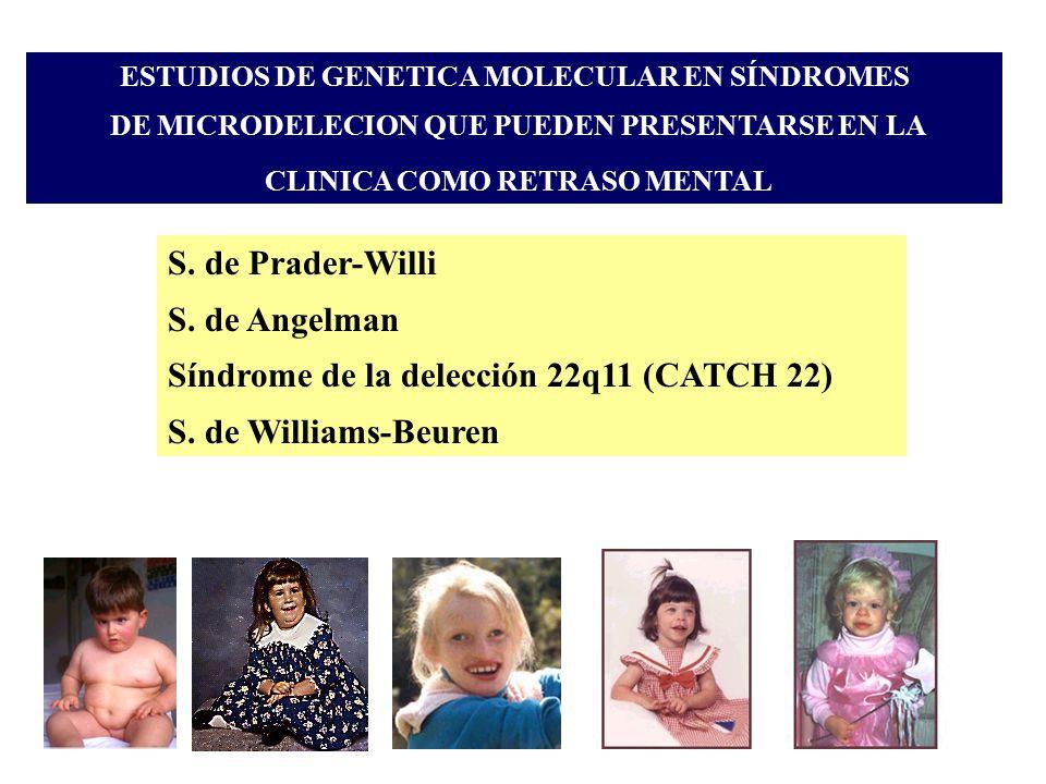 Síndrome de la delección 22q11 (CATCH 22) S. de Williams-Beuren
